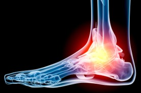 alberta plantar fascia treatments